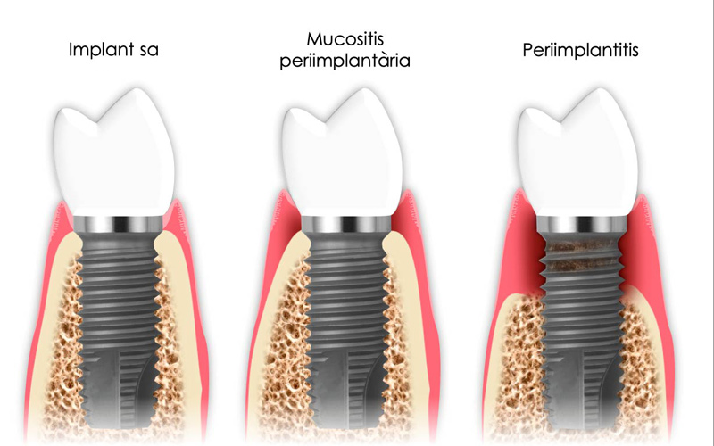 Mantenimient implants