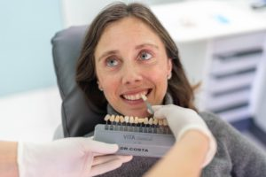 Beneficios estética dental